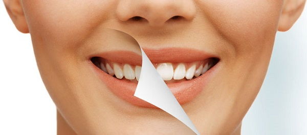 Teeth Whitening at a Claremont Dentist