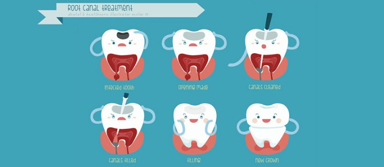 Root Canal Illustration  - Dentist Clarmeont