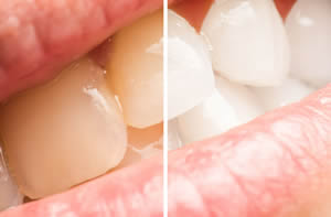 Dentist Claremont Cape Town Teeth Whitening
